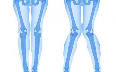 جراحی اصلاح پای ضربدری، هزینه عمل،مراقبت ها و عوارض