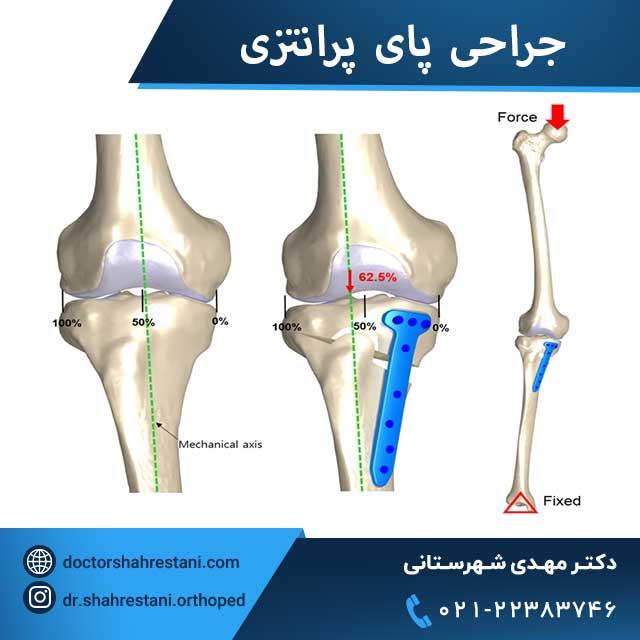 عکس جراحی پای پرانتزی یا استئوتومی