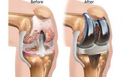 تعویض مفصل زانو، هزینه، عوارض و نحوه عمل جراحی