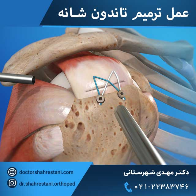 عمل جراحی ترمیم تاندون شانه