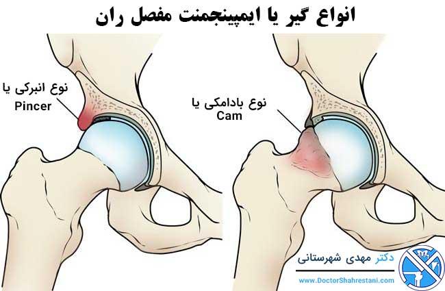 انواع ایمپینجمنت مفصل ران
