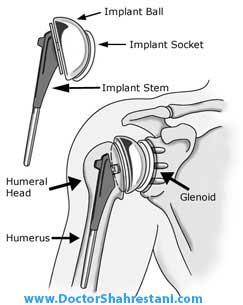آناتومی شانه و ایمپلنت های مصنوعی