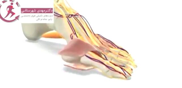 جراحی انحراف انگشت شست پا