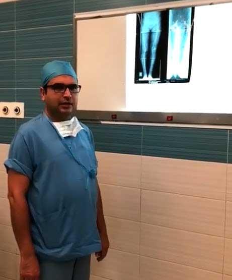 تعویض مفصل زانو برای بیمار 66 ساله
