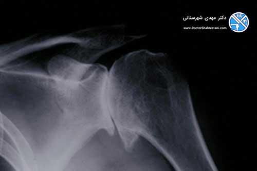 عکس رادیولوژی آرتروز شانه