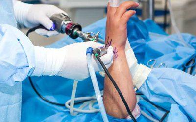 آرتروسکوپی مچ دست، هزینه عمل، مراقبت های بعد از جراحی