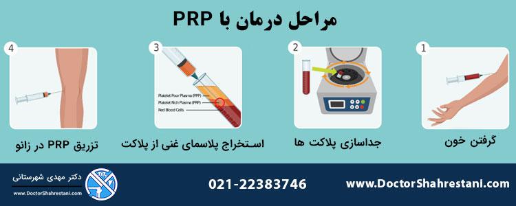مراحل تزریق prp زانو