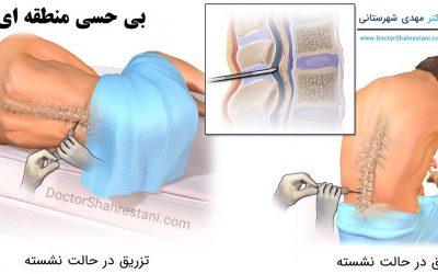 انواع روش های بیهوشی برای جراحی زانو و جراحی لگن
