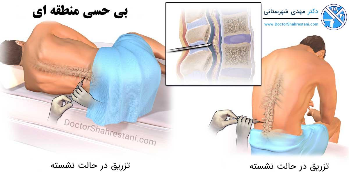 نحوه انجام بی حسی برای عمل جراحی زانو و لگن
