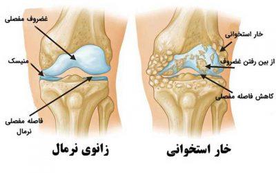 آرتریت زانو، علائم، درمان و هزینه جراحی