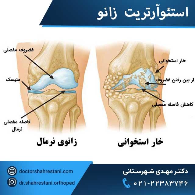 خار استخوانی زانو(استئوآرتریت)