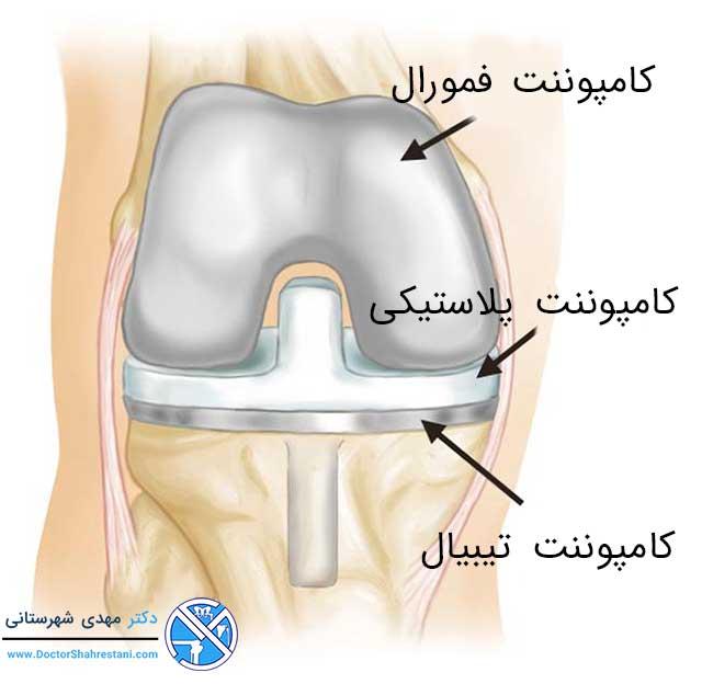 جراحی اولیه تعویض کامل مفصل زانو