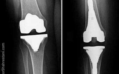 جراحی مجدد تعویض کامل مفصل زانو