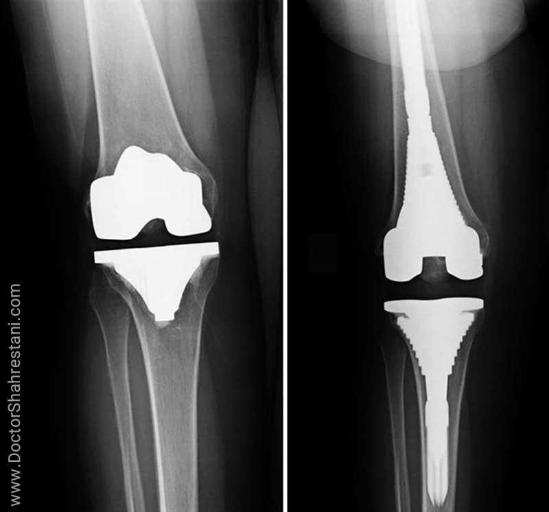 ناپایدار شدن مفصل مصنوعی زانو بعد از چند سال