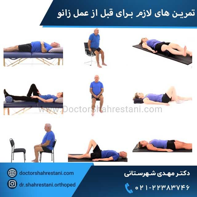 تمرین ها و ورزش های لازم برای قبل از عمل زانو
