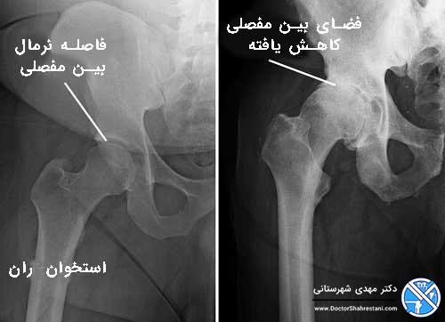 عکس اشعه ایکس و مقایسه مفصل ران سالم با مفصل دارای آرتروز