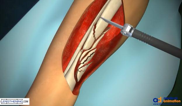 انیمیشن جالبی از جراحی ترمیم شکستگی استخوان ساق پا