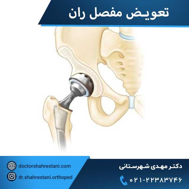 تعویض مفصل لگن یا ران مبتلا به آرتروز