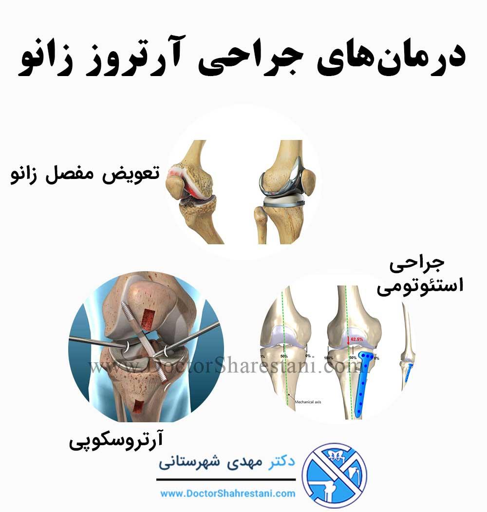 درمان آرتروز زانو با جراحی
