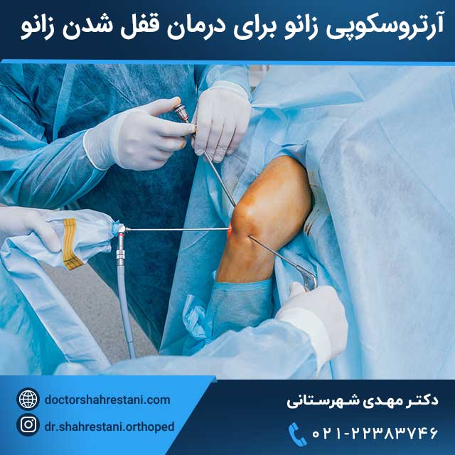 درمان قفل کردن زانو با جراحی آرتروسکوپی