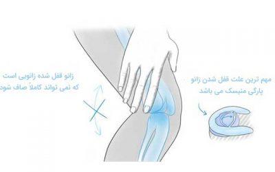 علت قفل شدن زانو و درمان آن