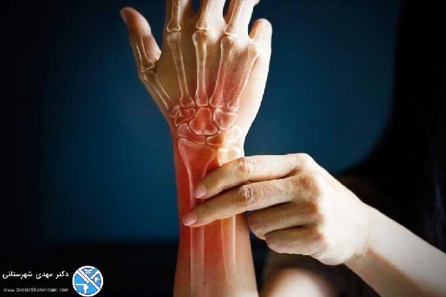 آرتریت مچ دست