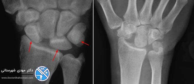 تصویر اشعه ایکس مچ دست