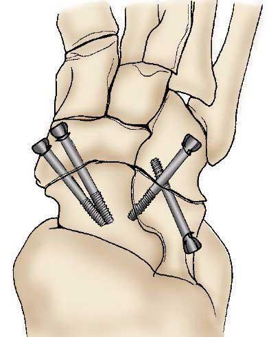 پیچ های مورد استفاده در درمان آرترین پا
