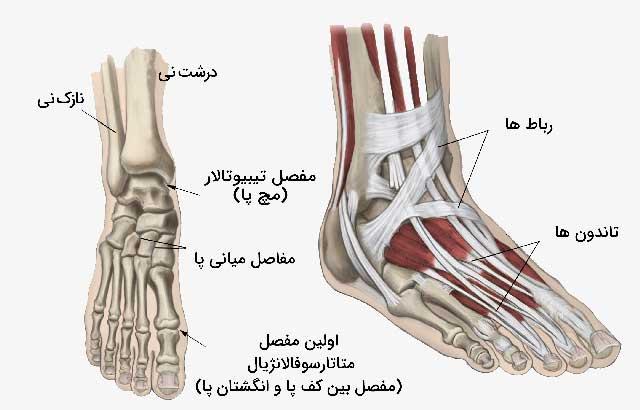 تاثیر بیماری آرتریت بر مفاصل پا