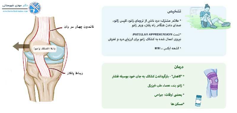 تشخیص و درمان در رفتگی زانو