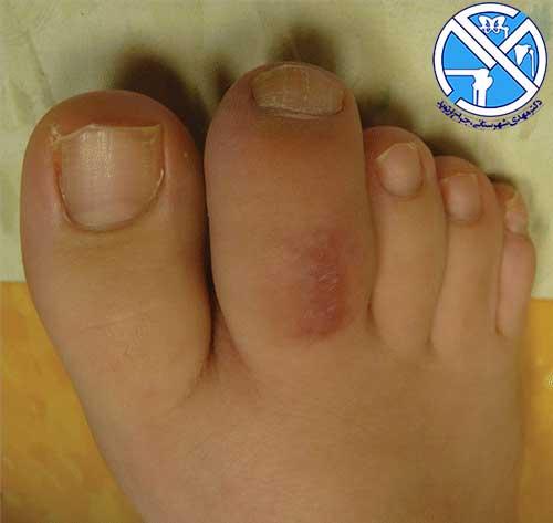 پای بیمار مبتلا به آرتریت نوجوانی