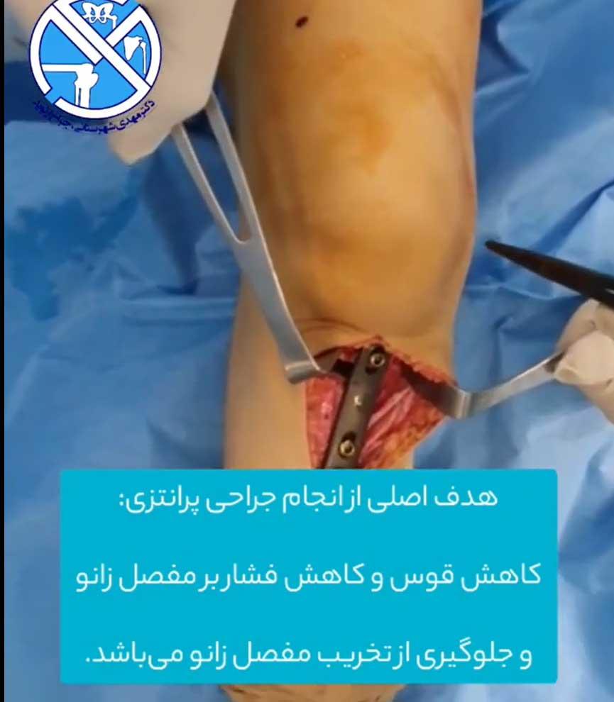 هدف از انجام جراحی استئوتومی زانو