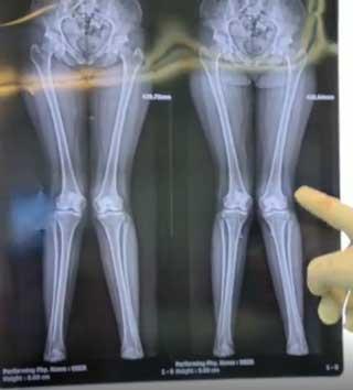 جراحی اصلاح پای ضربدری(ایکس)