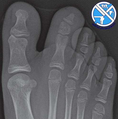 عکس ایکس ری از پای بیمار مبتلا به آرتریت نوجوانی