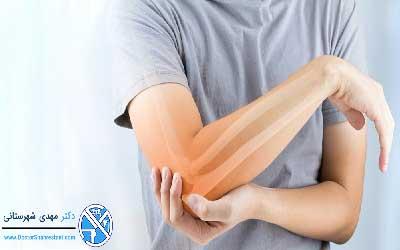 تعویض کامل مفصل آرنج