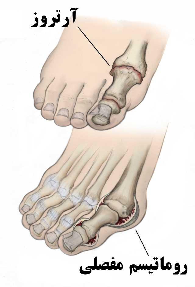 تاثیر آرتروز و روماتیسم مفصلی بر پای بیمار
