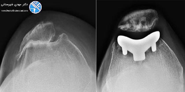 تغییر شکل زانو به دلیل آرتریت و تعویض پاتلوفمورال