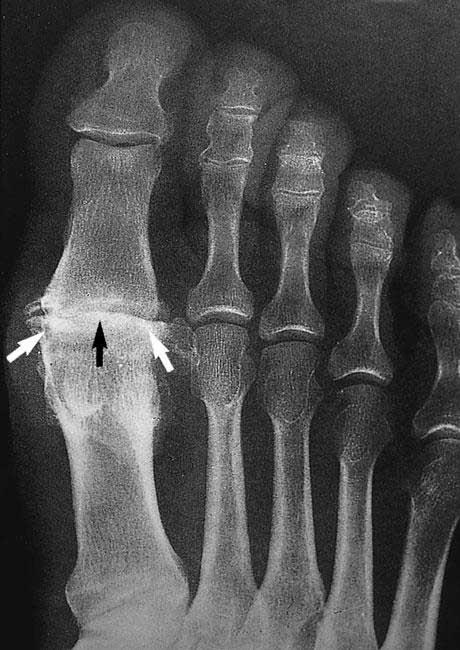 عکس اشعه ایکس استئوآرتریت مفصل متاتارسوفالنژیال
